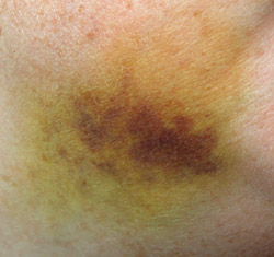 Coloring Stages of Bruises
