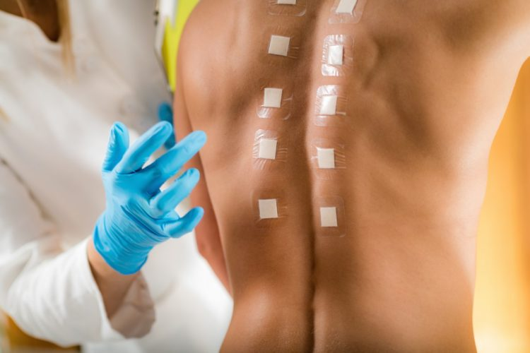 Medical professional doing allergy testing on skin
